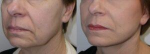 Como acabar com as rugas no rosto